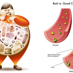 Good, Bad, and Ugly Cholesterol And How to Control It?